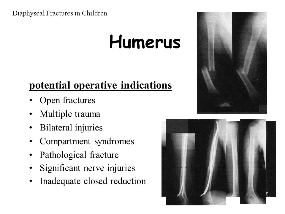 Humerus potential operative indications Open fractures Multiple trauma Bilateral injuries Compartment syndromes Pathological fracture Significant nerve injuries Inadequate closed reduction Diaphyseal Fractures in Children