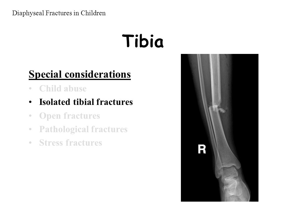 Tibia Special considerations Child abuse Isolated tibial fractures Open fractures Pathological fractures Stress fractures Diaphyseal Fractures in Children