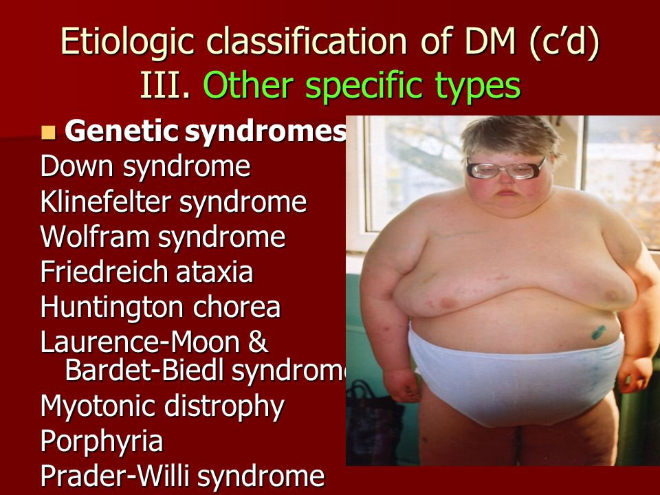 Etiologic classification of DM (c'd) III. Other specific types Genetic syndromes Genetic syndromes Down syndrome Klinefelter syndrome Wolfram syndrome