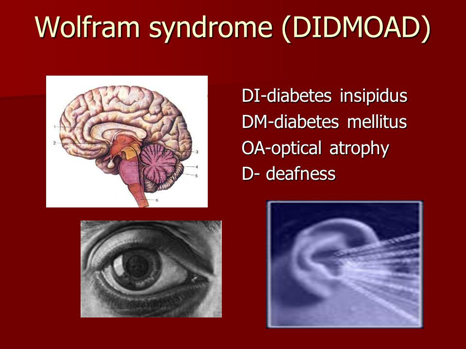 Wolfram syndrome (DIDMOAD) DI-diabetes insipidus DM-diabetes mellitus OA-optical atrophy D- deafness