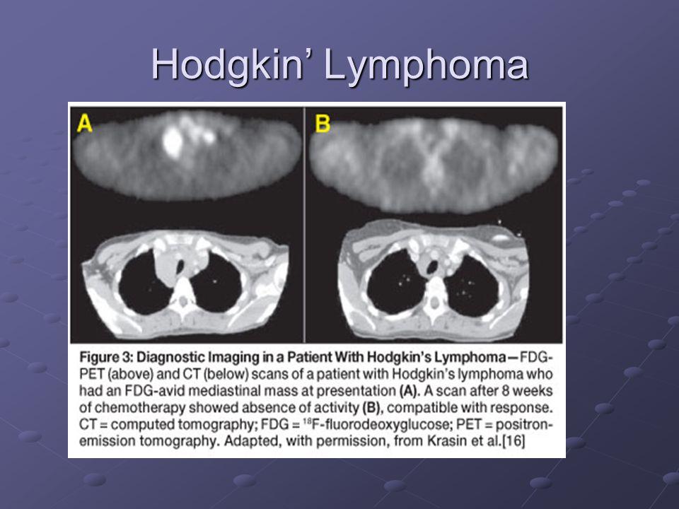 Hodgkin' Lymphoma