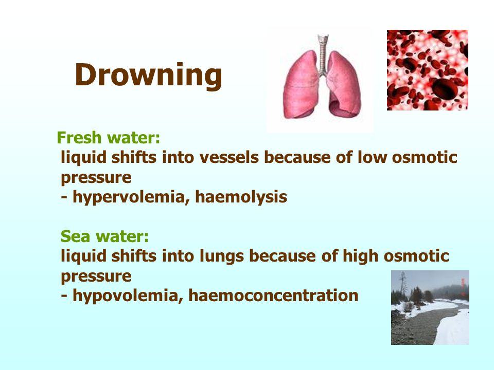 Drowning Fresh water: liquid shifts into vessels because of low osmotic pressure - hypervolemia, haemolysis Sea water: liquid shifts into lungs because of high osmotic pressure - hypovolemia, haemoconcentration