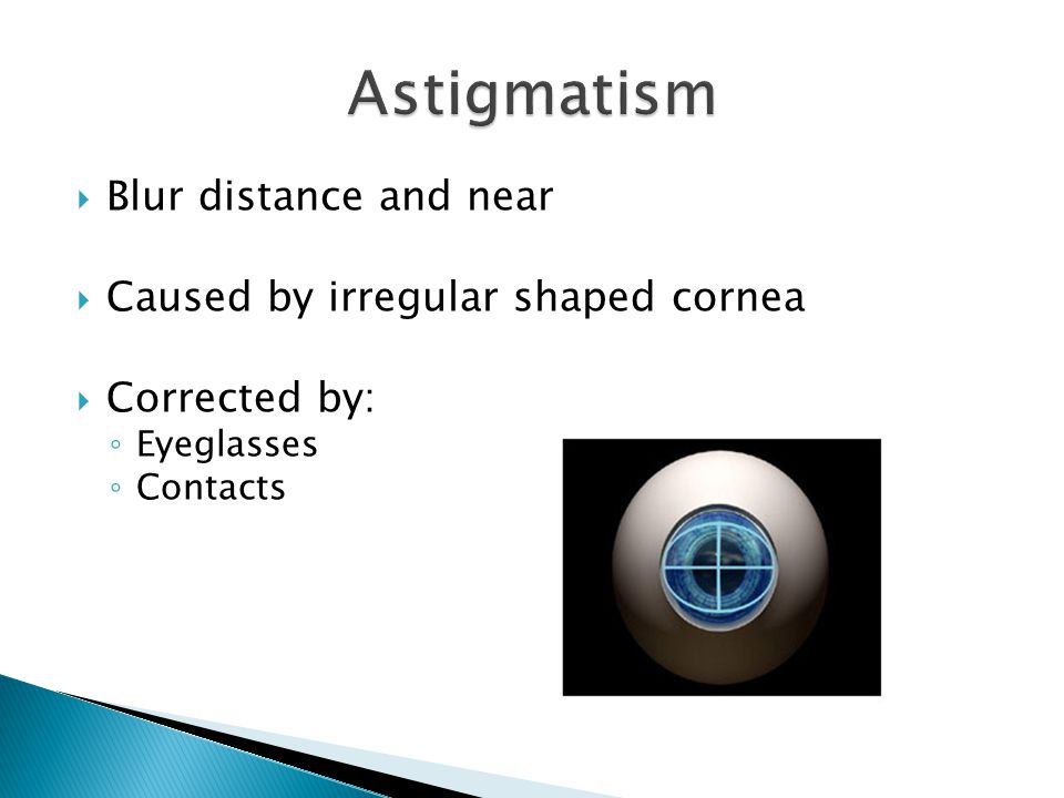  Blur distance and near  Caused by irregular shaped cornea  Corrected by: ◦ Eyeglasses ◦ Contacts