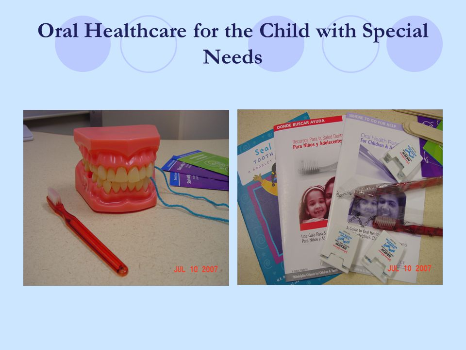 Oral Healthcare for the Child with Special Needs