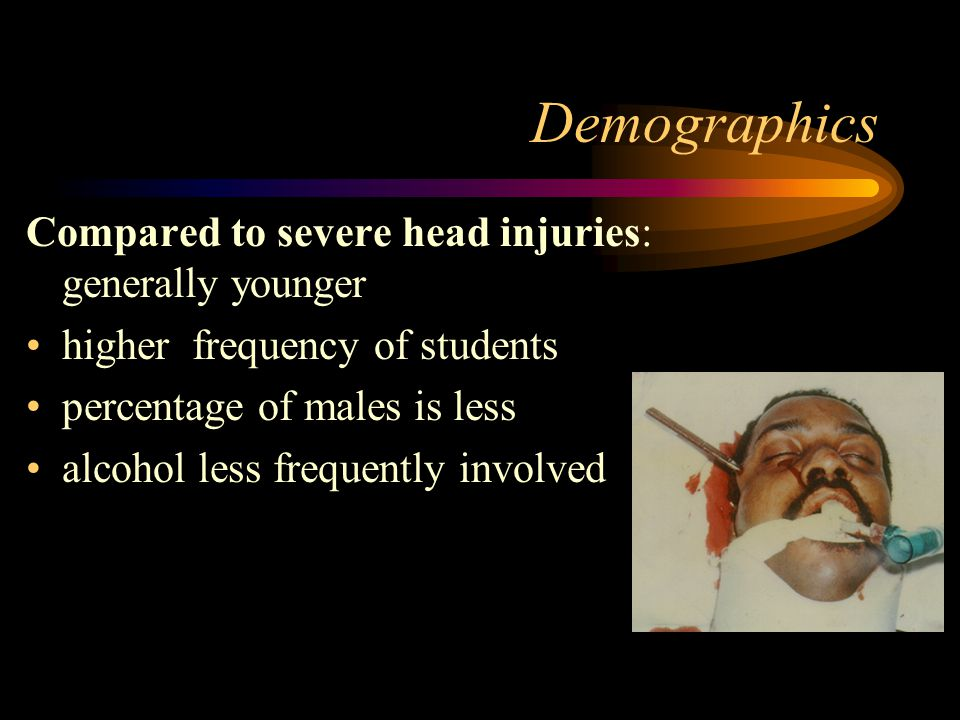 Epidemiology Head injury overview: 1:10 has loss of consciousness 250-500,00 hospitalizations/year 4,000 deaths/year 15-20,000 prolonged hospitalizati