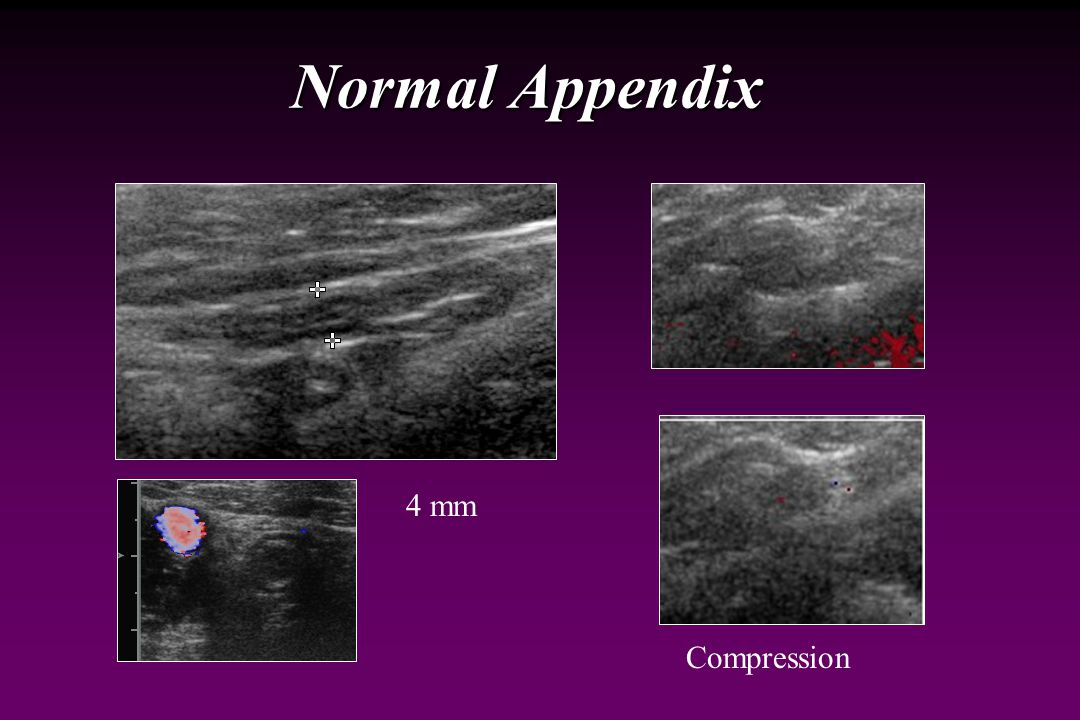 Ultrasound for Appendicitis False positive diagnosis False positive diagnosis Identify a normal appendix as abnormal Identify a normal appendix as abnormal Should be 6 mm or less diameter, compressible, no adjacent inflammatory changes Should be 6 mm or less diameter, compressible, no adjacent inflammatory changes Other causes of RLQ inflammation Other causes of RLQ inflammation Crohn disease Crohn disease Inflamed Meckel diverticulum Inflamed Meckel diverticulum Pelvic inflammatory disease Pelvic inflammatory disease
