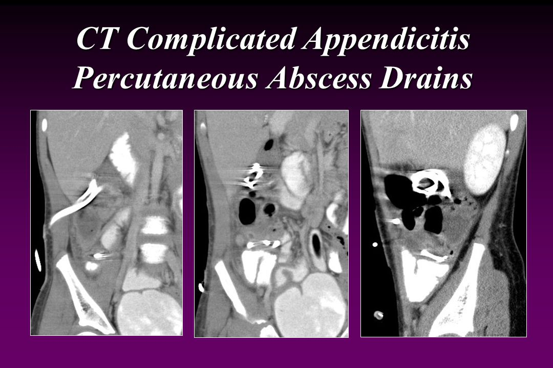 CT Complicated Appendicitis Abscesses