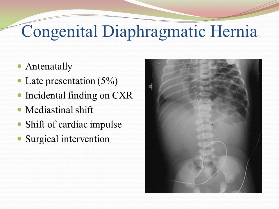 Congenital Diaphragmatic Hernia Antenatally Late presentation (5%) Incidental finding on CXR Mediastinal shift Shift of cardiac impulse Surgical inter