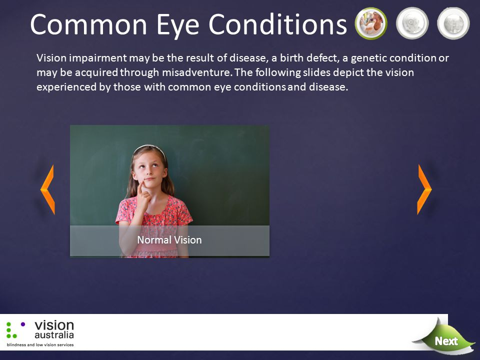 Common Eye Conditions Vision impairment may be the result of disease, a birth defect, a genetic condition or may be acquired through misadventure. The