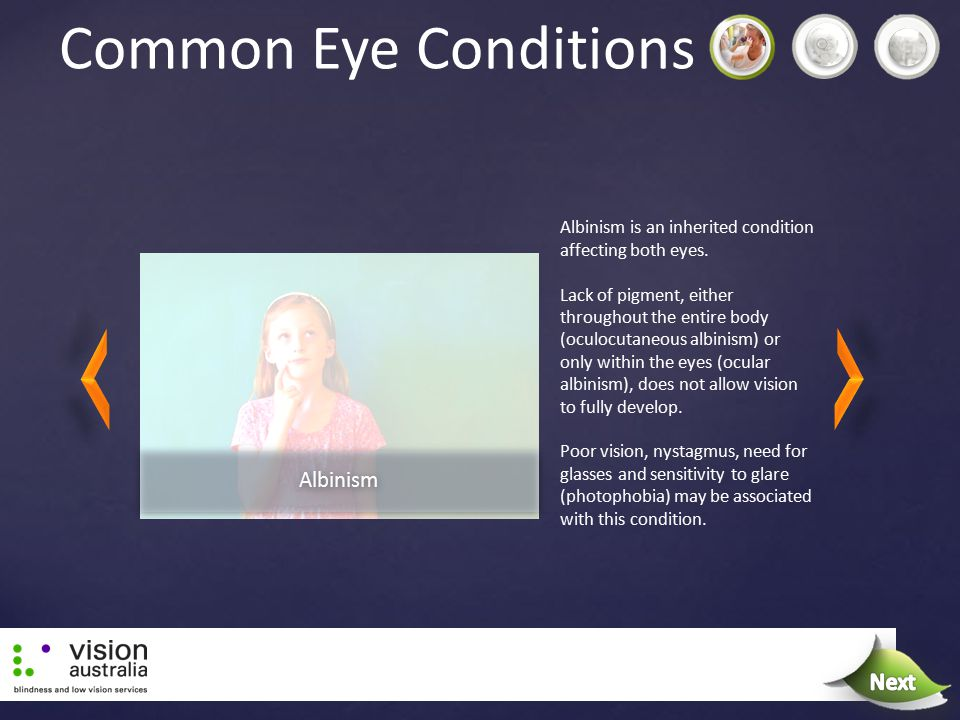 Common Eye Conditions Albinism is an inherited condition affecting both eyes. Lack of pigment, either throughout the entire body (oculocutaneous albin
