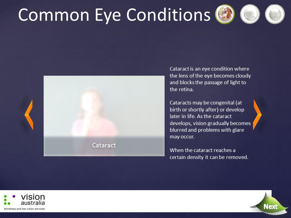 Common Eye Conditions Cataract is an eye condition where the lens of the eye becomes cloudy and blocks the passage of light to the retina. Cataracts m