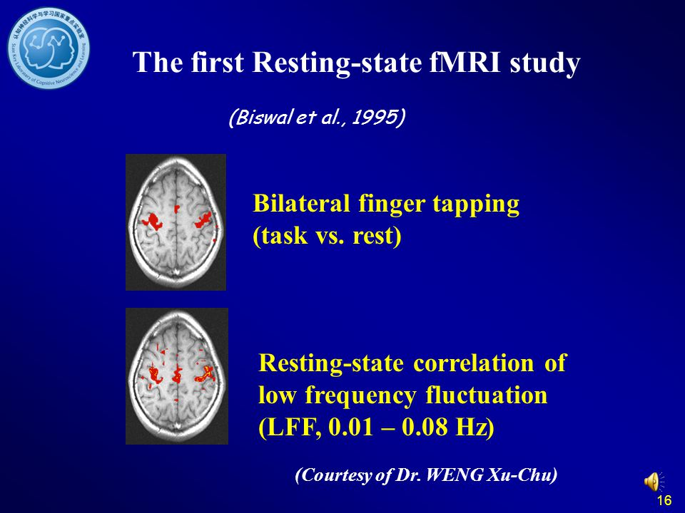 16 The first Resting-state fMRI study (Biswal et al., 1995) Bilateral finger tapping (task vs. rest) Resting-state correlation of low frequency fluctu