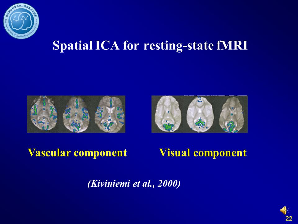22 Spatial ICA for resting-state fMRI Vascular componentVisual component (Kiviniemi et al., 2000)