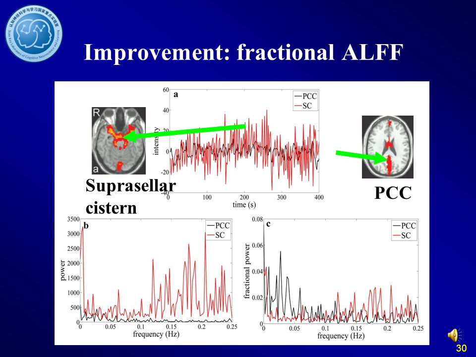 30 Improvement: fractional ALFF Suprasellar cistern PCC