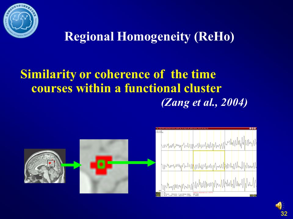 32 Regional Homogeneity (ReHo) Similarity or coherence of the time courses within a functional cluster (Zang et al., 2004)