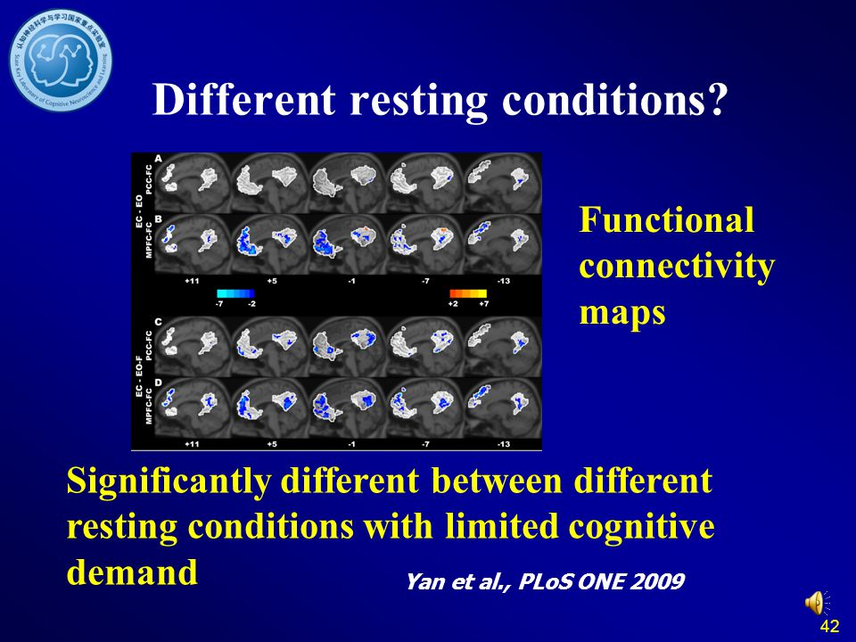 42 Different resting conditions? Significantly different between different resting conditions with limited cognitive demand Yan et al., PLoS ONE 2009