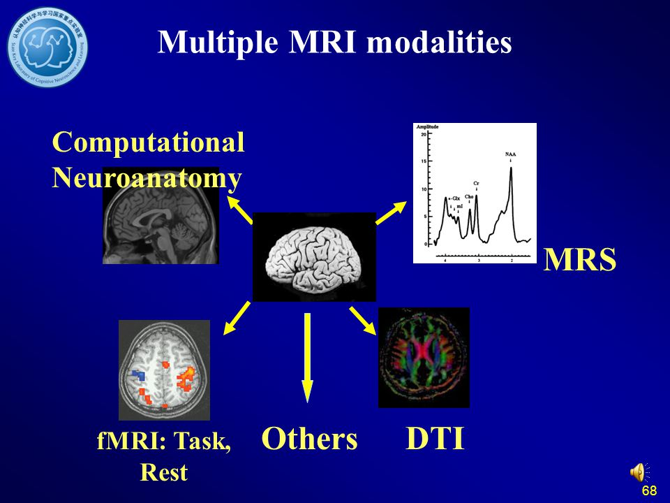 68 Multiple MRI modalities DTI fMRI: Task, Rest MRS Others Computational Neuroanatomy