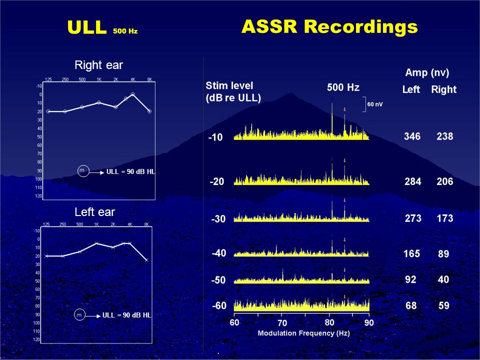 ULL = 90 dB HL ULL 500 Hz Right ear Left ear ASSR Recordings
