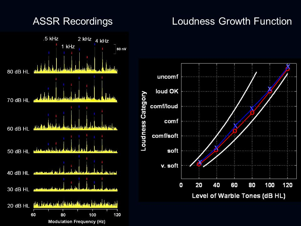 ASSR Recordings Loudness Growth Function