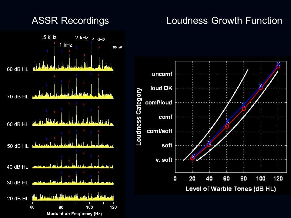ULLs Measurement Procedure 500 Hz 3 kHz Acoustical Spectrum Electrical Waveform 500 Hz 3 kHz