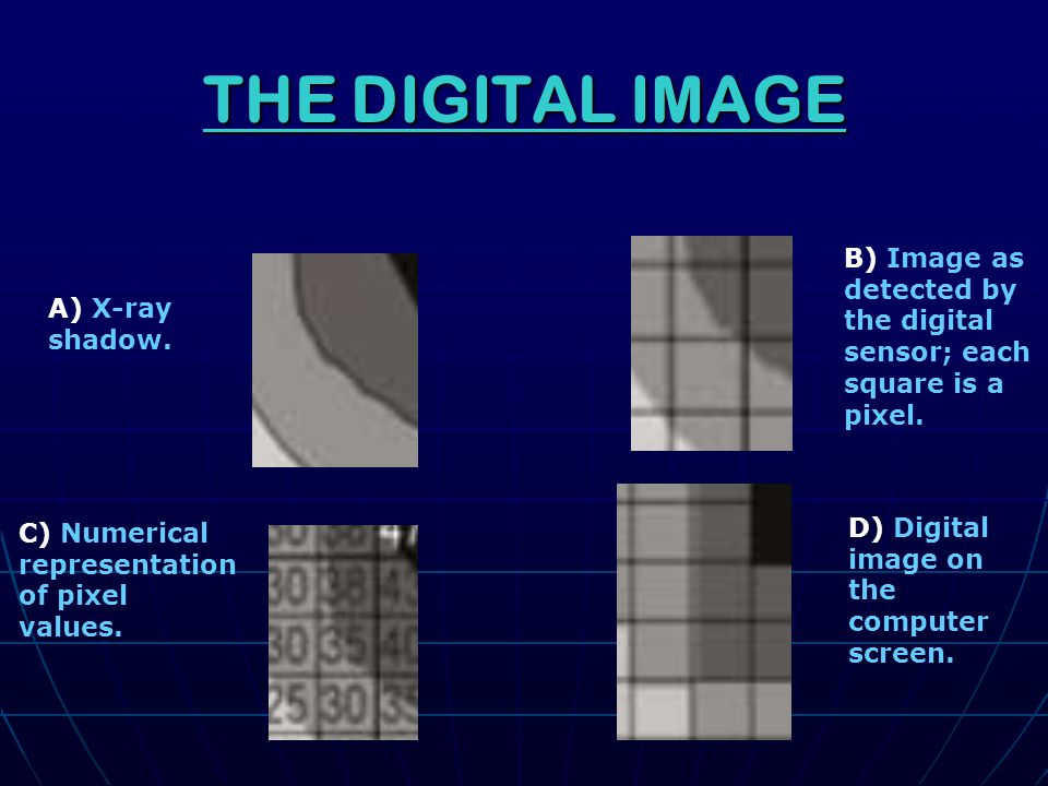 QUALITY FACTORS Resolution: how well closely spaced objects can be distinguished Resolution: how well closely spaced objects can be distinguished Sharpness: distinctiveness of feature boundaries Sharpness: distinctiveness of feature boundaries Contrast: distinctiveness of light and dark areas.