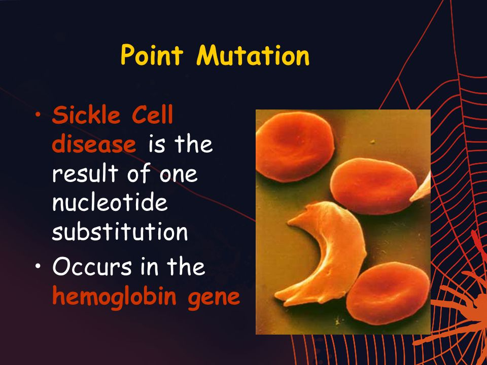Point Mutation Sickle Cell disease is the result of one nucleotide substitution Occurs in the hemoglobin gene