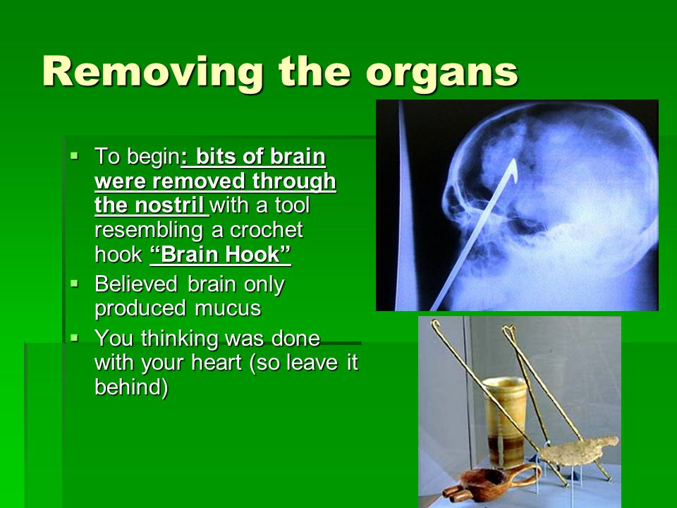 Removing the organs  To begin: bits of brain were removed through the nostril with a tool resembling a crochet hook Brain Hook  Believed brain only produced mucus  You thinking was done with your heart (so leave it behind)