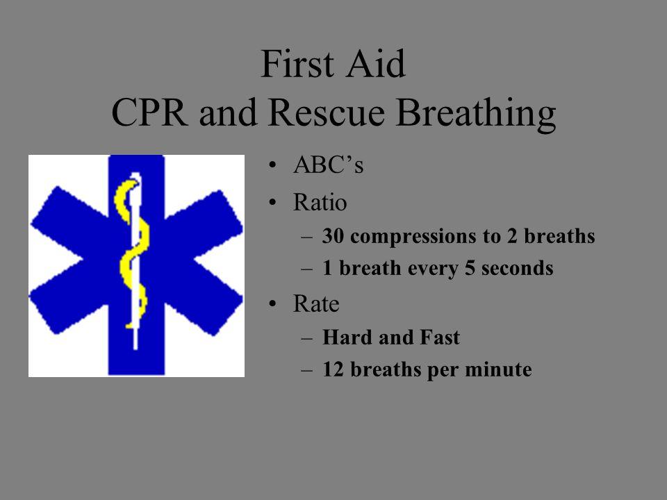 First Aid Control of Bleeding Direct Pressure –95% Elevation –97% Pressure Points –99% Tourniquet –Last resort 1%