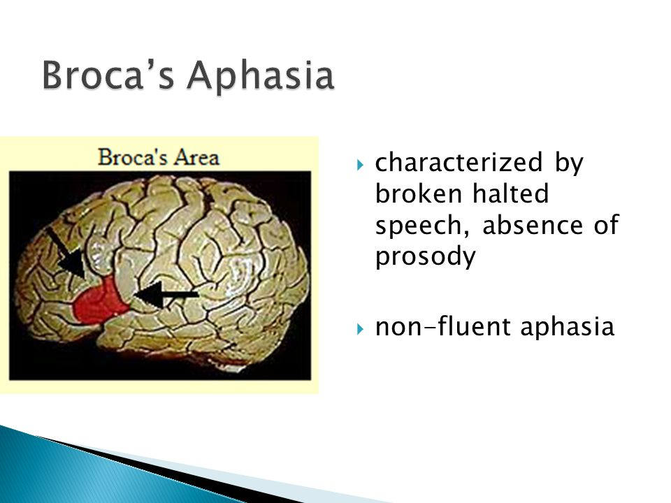  characterized by broken halted speech, absence of prosody  non-fluent aphasia