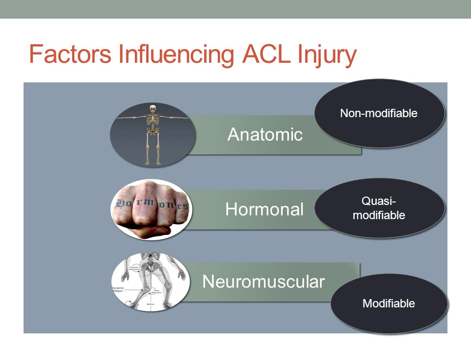 Factors Influencing ACL Injury Anatomic Hormonal Neuromuscular Modifiable Non-modifiable Quasi- modifiable