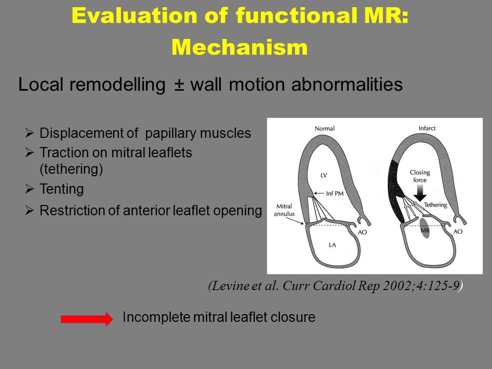 Evaluation of functional MR: Mechanism Local remodelling ± wall motion abnormalities  Displacement of papillary muscles  Traction on mitral leaflets (tethering)  Tenting  Restriction of anterior leaflet opening Incomplete mitral leaflet closure (Levine et al.