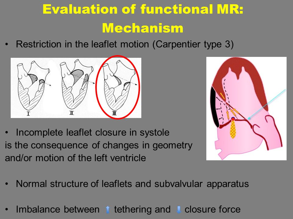 Restriction in the leaflet motion (Carpentier type 3) Incomplete leaflet closure in systole is the consequence of changes in geometry and/or motion of
