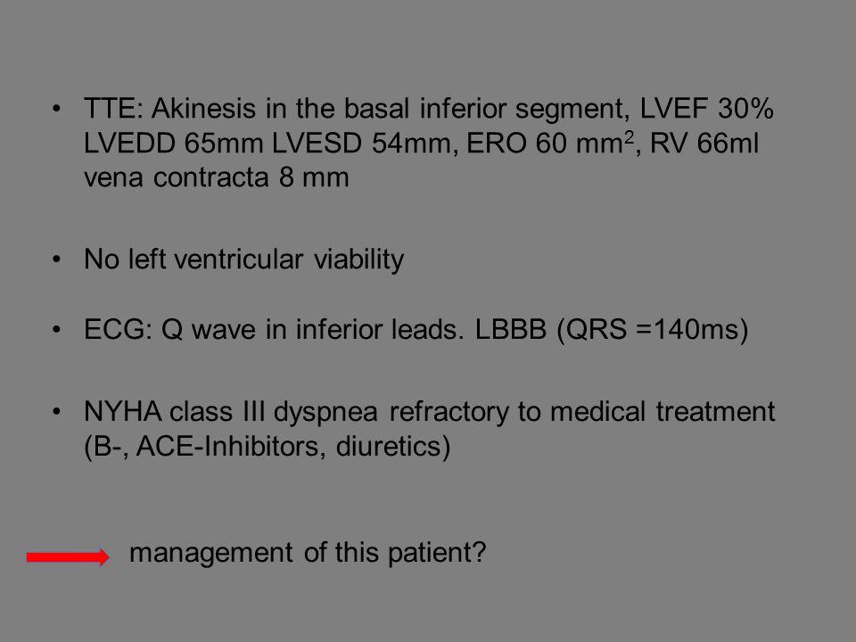 TTE: Akinesis in the basal inferior segment, LVEF 30% LVEDD 65mm LVESD 54mm, ERO 60 mm 2, RV 66ml vena contracta 8 mm No left ventricular viability ECG: Q wave in inferior leads.