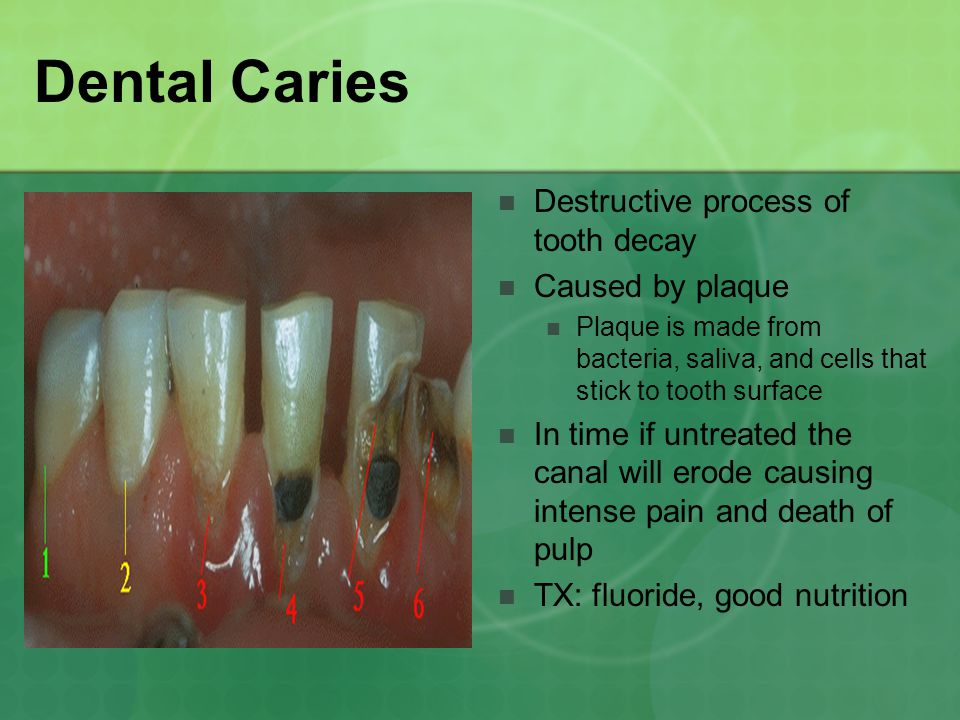 Dental Caries Destructive process of tooth decay Caused by plaque Plaque is made from bacteria, saliva, and cells that stick to tooth surface In time if untreated the canal will erode causing intense pain and death of pulp TX: fluoride, good nutrition