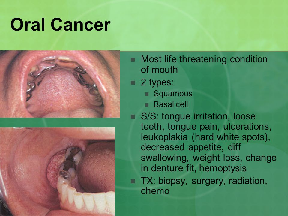 Oral Cancer Most life threatening condition of mouth 2 types: Squamous Basal cell S/S: tongue irritation, loose teeth, tongue pain, ulcerations, leukoplakia (hard white spots), decreased appetite, diff swallowing, weight loss, change in denture fit, hemoptysis TX: biopsy, surgery, radiation, chemo
