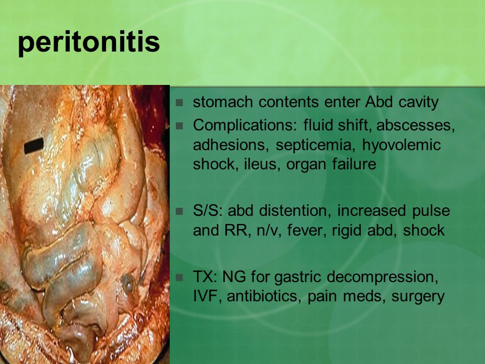 peritonitis stomach contents enter Abd cavity Complications: fluid shift, abscesses, adhesions, septicemia, hyovolemic shock, ileus, organ failure S/S: abd distention, increased pulse and RR, n/v, fever, rigid abd, shock TX: NG for gastric decompression, IVF, antibiotics, pain meds, surgery