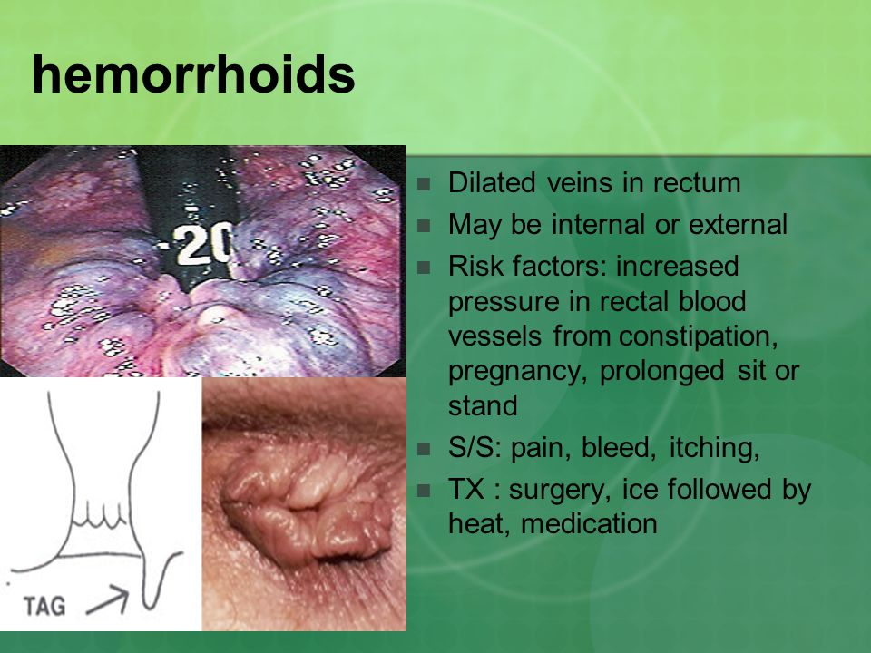 hemorrhoids Dilated veins in rectum May be internal or external Risk factors: increased pressure in rectal blood vessels from constipation, pregnancy,