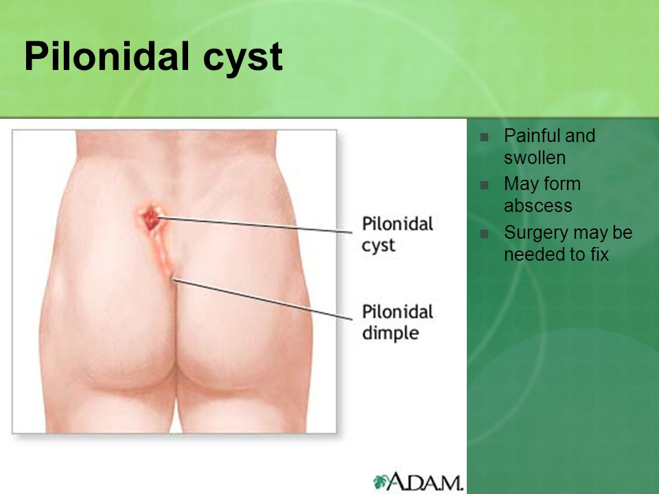 Pilonidal cyst Painful and swollen May form abscess Surgery may be needed to fix