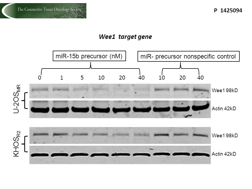 Wee1 98kD 0 1 5 10 20 40 miR-15b precursor (nM) U-2OS MR 10 20 40 miR- precursor nonspecific control Actin 42kD Wee1 98kD Actin 42kD KHOS R2 P 1425094