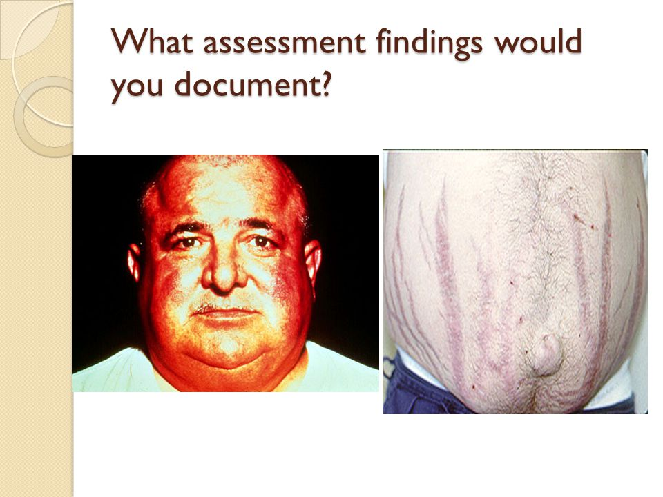 What assessment findings would you document