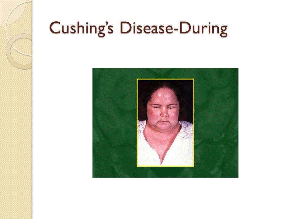 Cushing's Disease-During