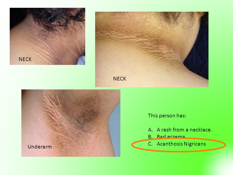 Underarm NECK This person has: A.A rash from a necklace. B.Bad eczema C.Acanthosis Nigricans