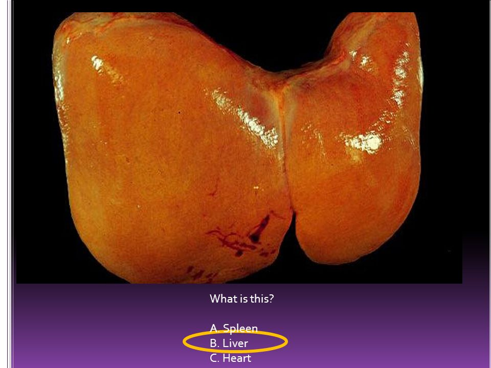 What is this? A. Spleen B. Liver C. Heart