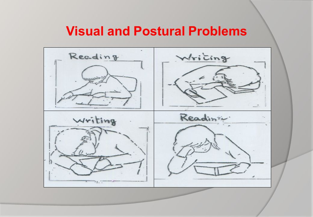 Visual and Postural Problems
