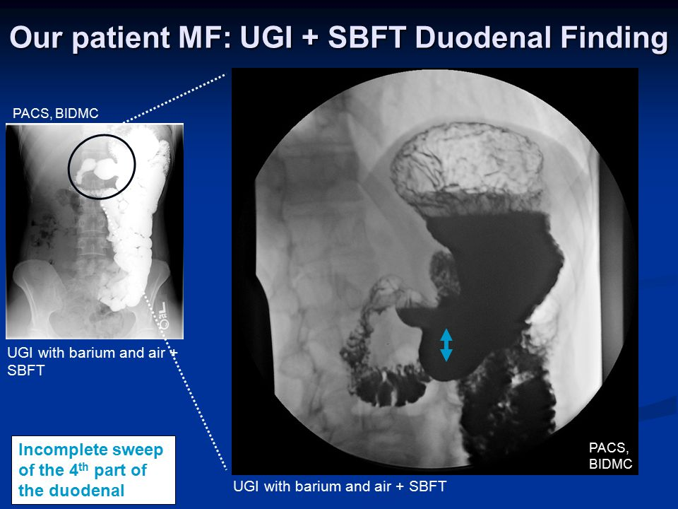 Incomplete sweep of the 4 th part of the duodenal PACS, BIDMC Our patient MF: UGI + SBFT Duodenal Finding UGI with barium and air + SBFT