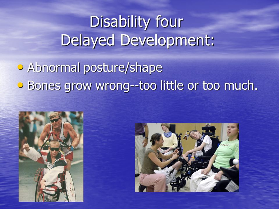 Disability four Delayed Development: Disability four Delayed Development: Abnormal Abnormal posture/shape Bones Bones grow wrong--too little or too mu