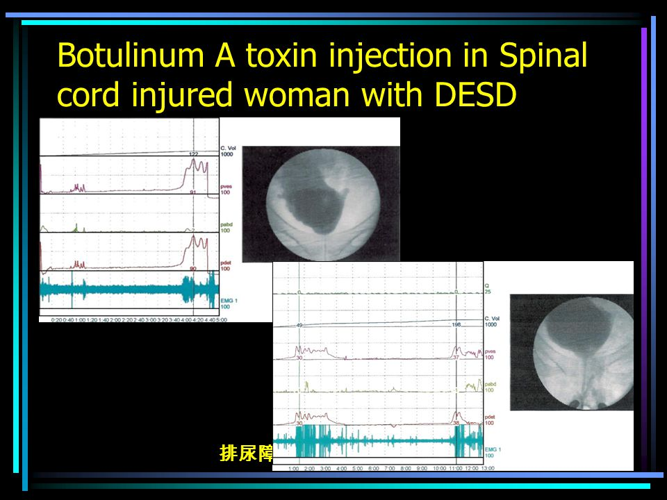 排尿障礙治療中心 版權所有 Botulinum A toxin injection in Spinal cord injured woman with DESD