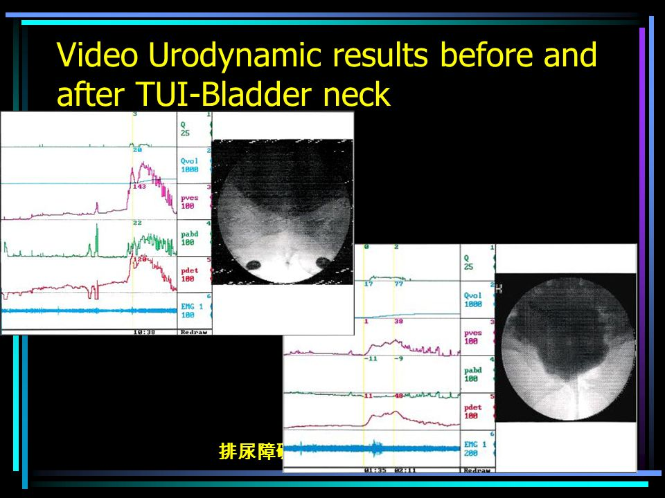 排尿障礙治療中心 版權所有 Video Urodynamic results before and after TUI-Bladder neck