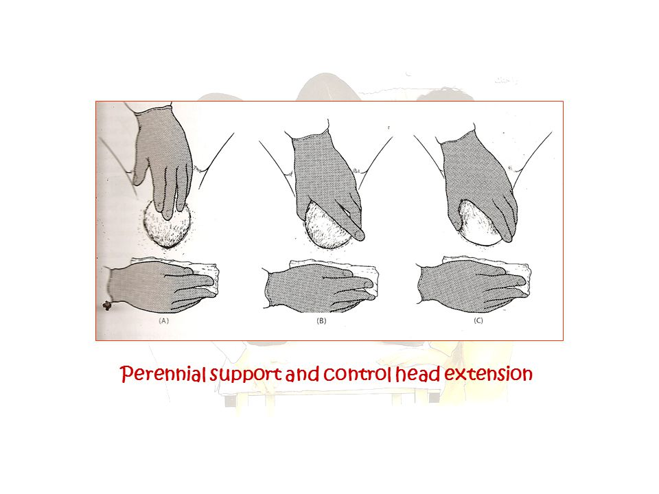 Perennial support and control head extension