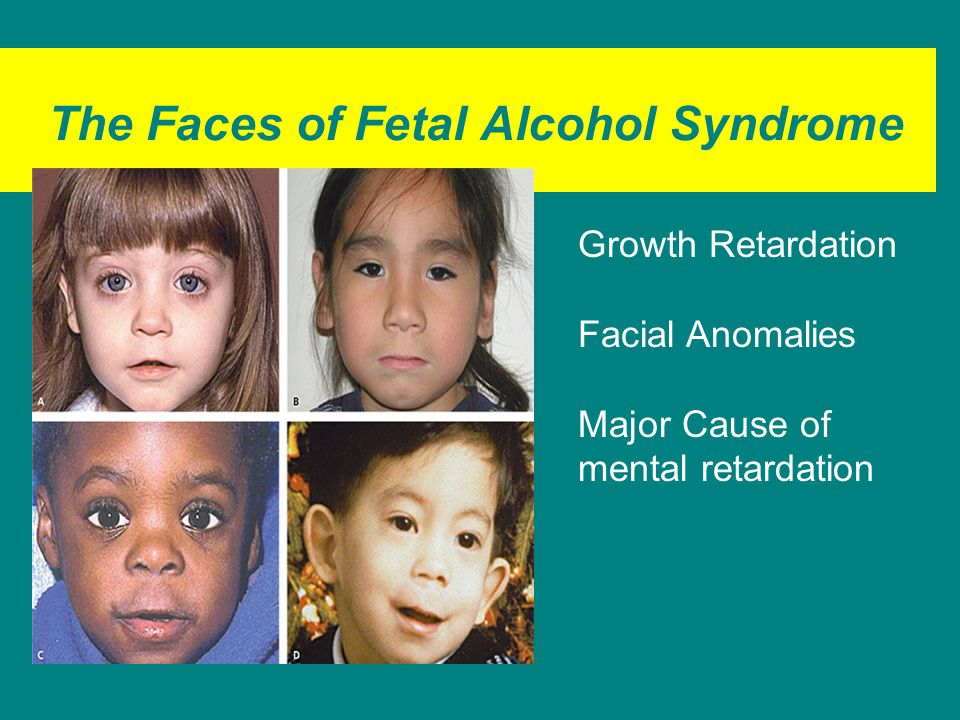The Faces of Fetal Alcohol Syndrome Growth Retardation Facial Anomalies Major Cause of mental retardation
